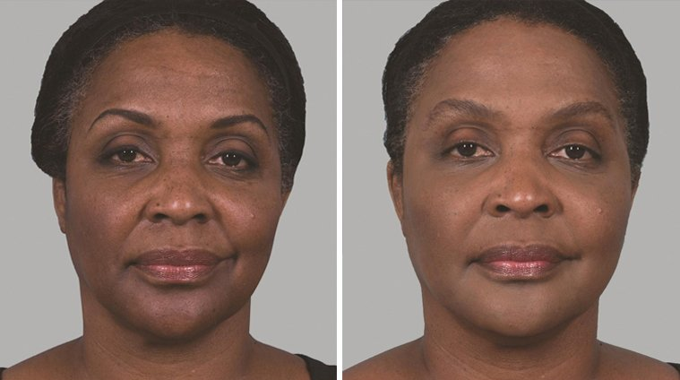 Sculptra Aesthetic before and after side photo