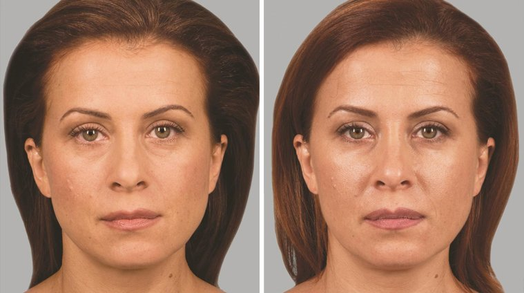 Sculptra Aesthetic before and after front photo