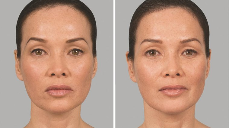 Sculptra Aesthetic before and after side photo 3