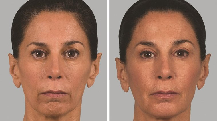 Sculptra Aesthetic before and after side photo 4