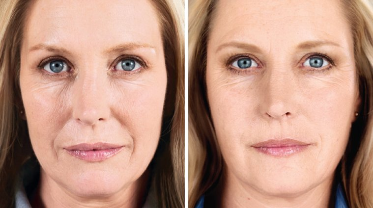 Sculptra Aesthetic before and after side photo 5