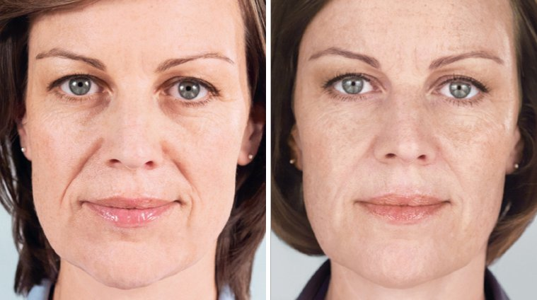 Sculptra Aesthetic before and after side photo 6