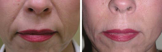 Radiesse woman patient before and after photo 1