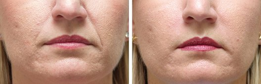 Radiesse woman patient before and after photo 2