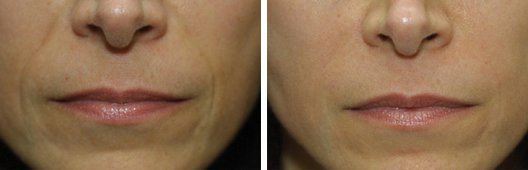Radiesse woman patient before and after photo 3