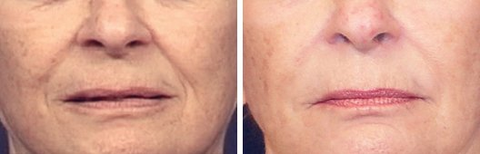 Radiesse woman patient before and after photo 4
