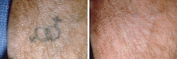 Laser Leg Vein Removal before and after side photo 3
