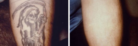 Laser Leg Vein Removal before and after side photo 4