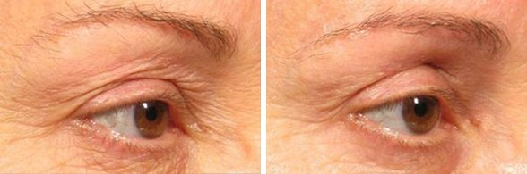 Ultherapy before and after side photo