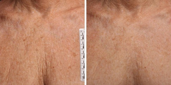 Ultherapy before and after side photo 10
