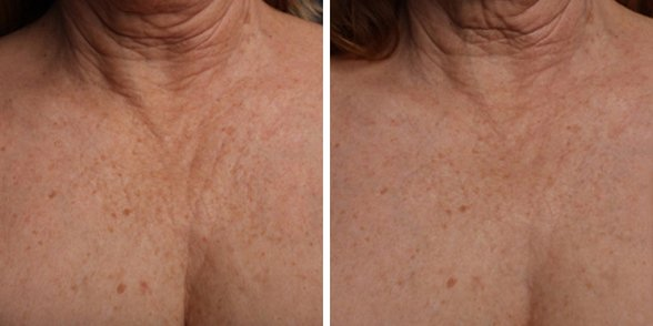 Ultherapy before and after side photo 11
