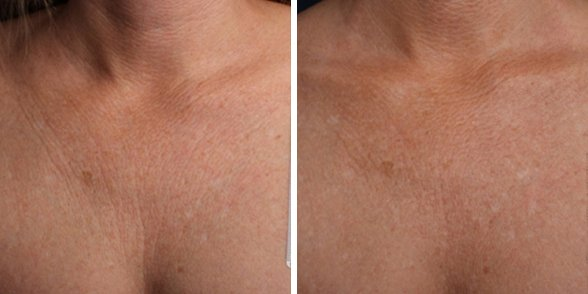 Ultherapy before and after side photo 12