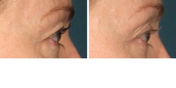 Ultherapy before and after side photo 3