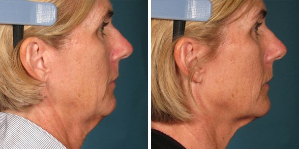 Ultherapy before and after side photo 4