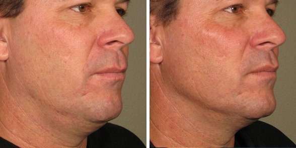 Ultherapy before and after side photo 6