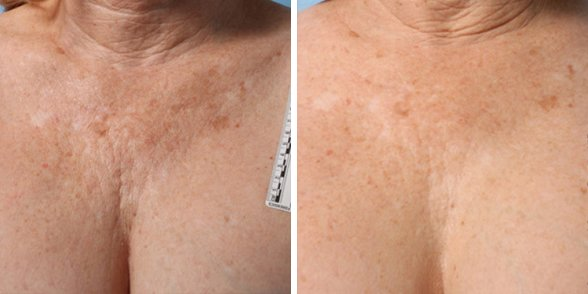 Ultherapy before and after side photo 7