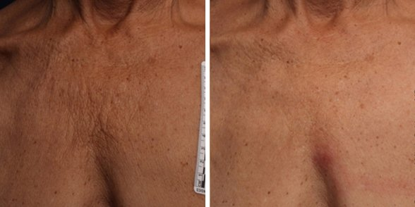 Ultherapy before and after side photo 9