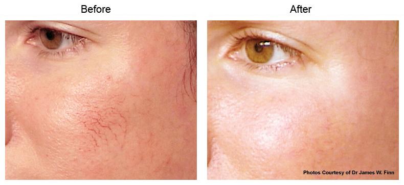 Santa Monica Vbeam Perfecta Skin Rejuvenation Beverly Hills