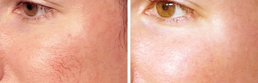 V-beam Laser Treatment FAQ before and after side photo 3