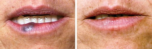 V-beam Laser Treatment FAQ before and after side photo 4