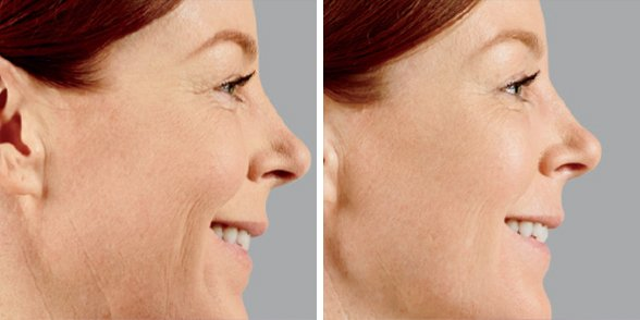 Juvederm before and after side photo 3