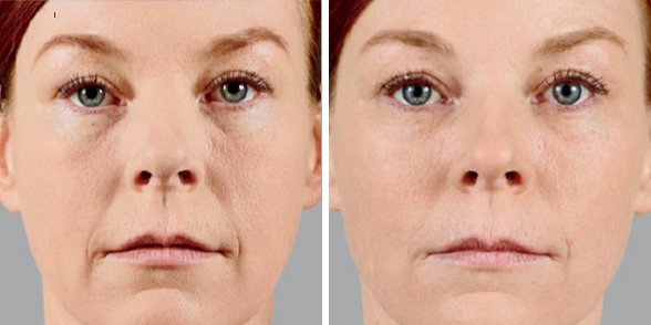 Juvederm before and after side photo 4