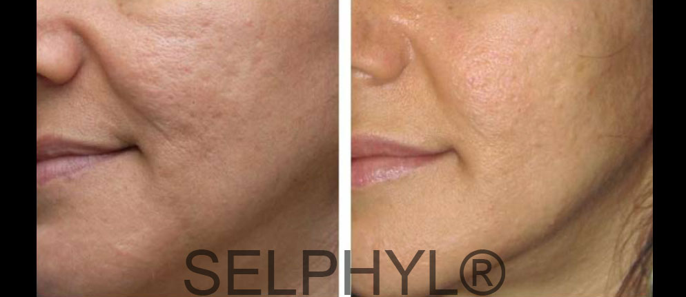 6 Reasons to Try Microneedling Before the New Year