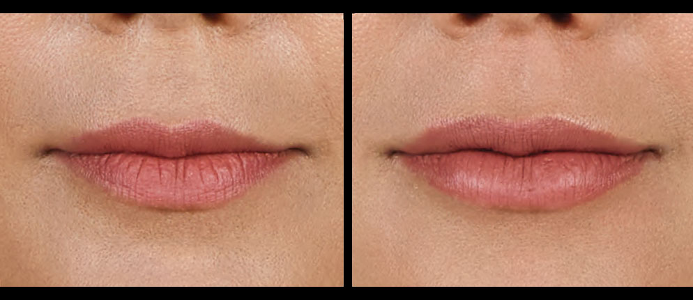 """Get Luscious Lips with Juvéderm Volbella<sup style=""""vertical-align: top; font-size: 25px;"""">®</sup> XC"""