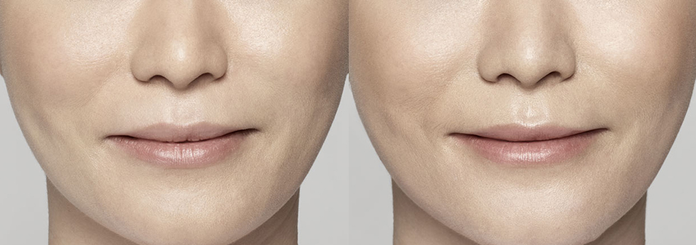Create a Youthful Appearance with Restylane® Lyft
