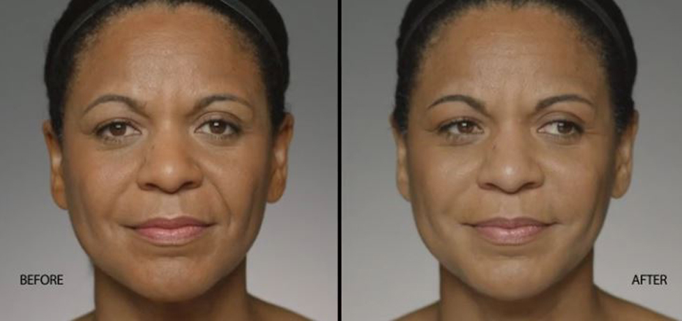 """Reduce Deep """"Laugh Lines"""" with Restylane® Defyne"""
