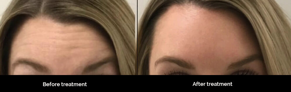 Forehead Wrinkles & Treatment in Los Angeles