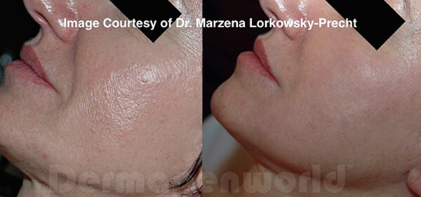 Revitalize Your Skin with Microneedling