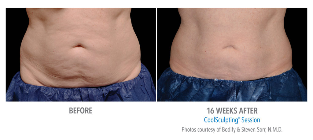 CoolSculpting Female Abdomen Before & After