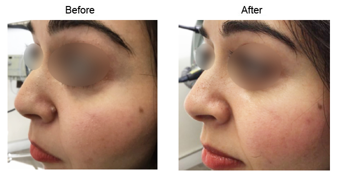 Mole Removal  before and after side photo