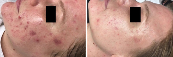 Los Angeles Acne Scar Treatment Before & After Photos