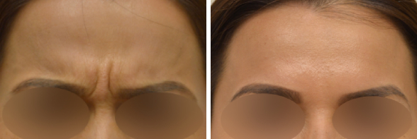 Botox Before & After Photos Beverly Hills and Santa Monica
