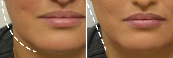 Injectables Photo Gallery