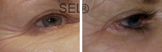 Skin Rejuvenation Photo Gallery