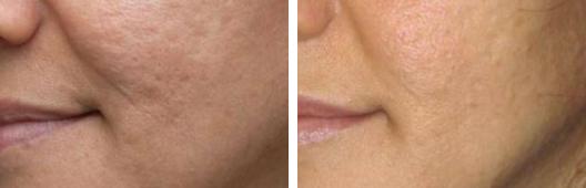 Medical Dermatology Photo Gallery