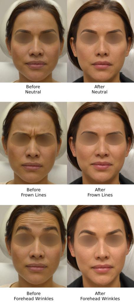 Botox® for Wrinkles in Los Angeles