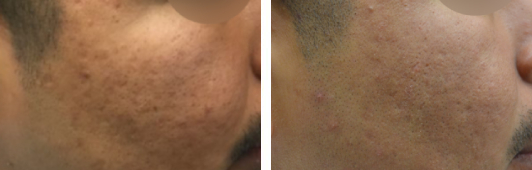 Fraxel laser acne patient before and after photos