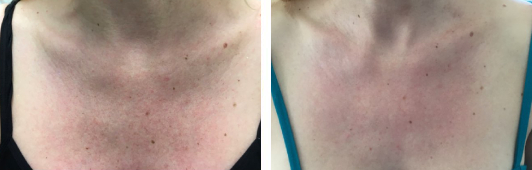 Fraxel laser sun damage patient before and after