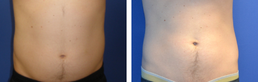 CoolSculpting Before & After Photos Beverly Hills and Santa Monica