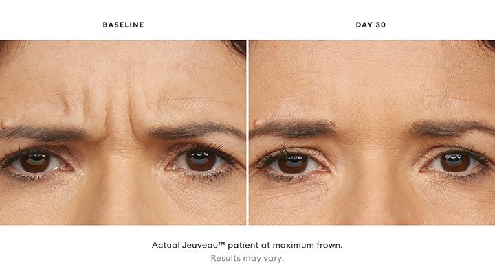 Jeuveau Before & After Set 1