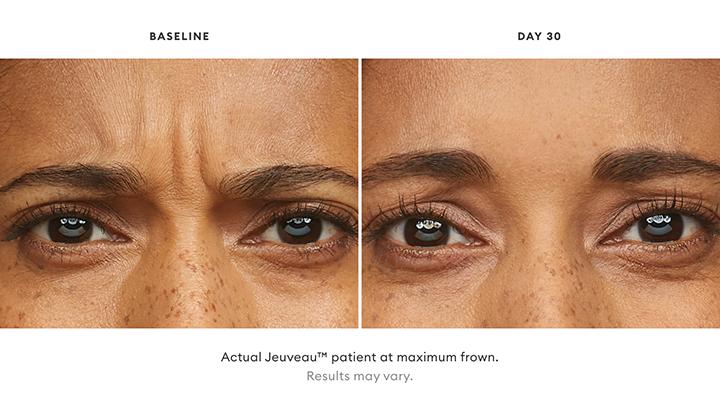 Jeuveau Before & After Set 2