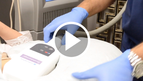 CoolSculpting Los Angeles   Fat Reduction Beverly Hills