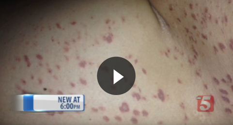 Patient Permanently Scarred by Botched Laser Procedure
