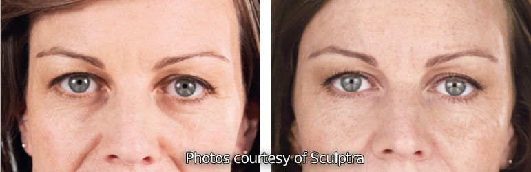 Undereye Circles Treatment with Dermal Fillers