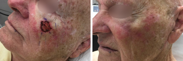 Los Angeles Mohs Surgery Before & After Photos