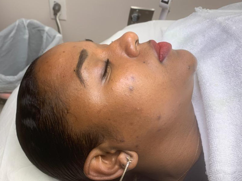 After Dermaplaning has been completed - Actual Patient of Dermatology Institute of Southern California
